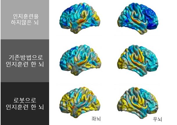 김건하 센터장 연구팀이 기존 방법으로 또는 로봇을 이용해 인지훈련을 했을 때의 뇌 변화를 MRI로 촬영한 것. 노란색을 띨수록 인지능력이 강화, 파란색을 띨수록 인지능력이 떨어짐을 나타낸다. 김건하 제공
