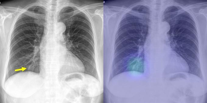 일반 흉부 X선 사진(왼쪽)과 인공지능 시스템이 확인한 사진(오른쪽). 서울대병원 제공