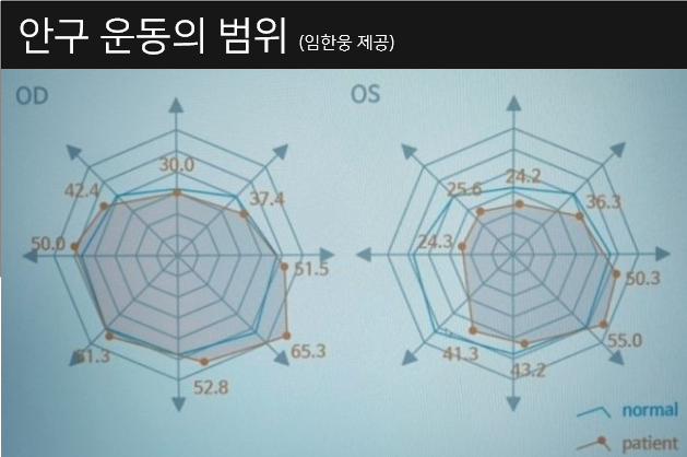 사시각 측정 의료로봇이 측정한 결과는 다각형 그래프로 나타난다. 사시가 심할 수록 다각형 모양이 찌그러진다.