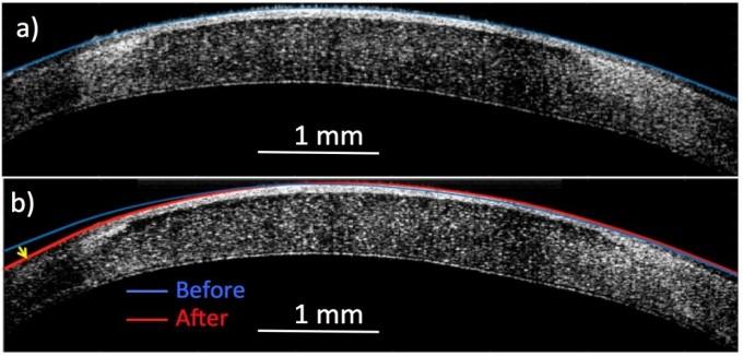 칼을 대지 않고 전류만 흘려보내는 것만으로도 콜라겐 조직을 변형시킬 수 있다. 사진은 전류를 이용해 각막의 곡률을 원래(파란색)보다 훨씬 휘어지게(빨간색) 변형한 것. 레이첼 큐, 안나 스토코로사, 샤를로트 쿨립 제공