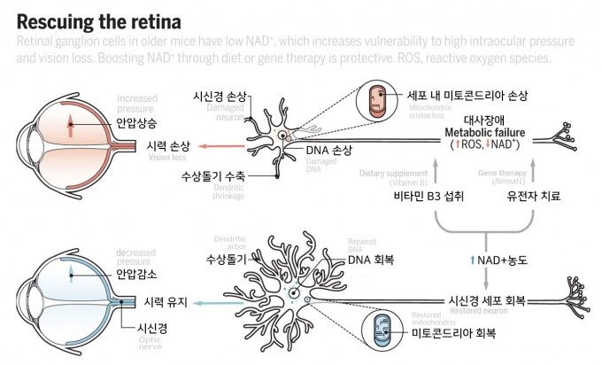 안압 상승으로 신경절세포(시신경)가 손상되면 광수용세포가 받은 빛 정보를 뇌로 전달하지 못해 실명이 된다. 세포 내 미토콘드리아가 부실해지면서 시신경이 손상되는데, 지난해 발표된 논문에 따르면 면역세포가 염증을 일으킬 때 생긴 활성산소(ROS)를 처리하느라 NAD+가 고갈된 결과일 수 있다(위). NAD+의 전구체인 비타민B3를 섭취하거나 유전자치료로 생합성 유전자를 넣어주면 세포 내 NAD+ 농도가 올라가면서 미토콘드리아가 활성을 되찾아 신경절세포도 회복되고 아울러 안압도 떨어진다 '사이언스' / G. GRULLON 제공