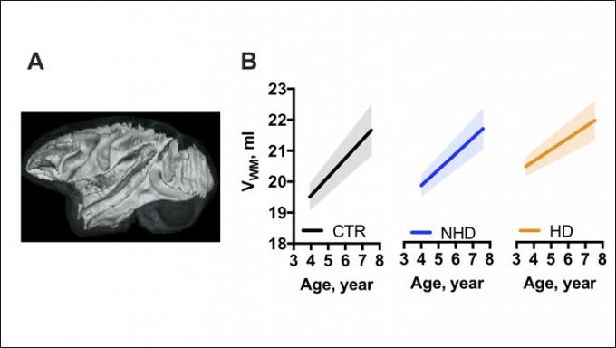 청소년기 때 음주는 뇌에서 특히 백질(A 그림)의 발달을 방해한다. B 그림은 나이에 따라 뇌 전체에 대한 백질 부피의 비율로 완만할수록 성장이 더디다는 것을 나타낸다. 술을 마시지 않는 원숭이(B 그림의 첫 번째)보다 술을 마실 때(B 그림의 두 번째), 지나치게 많이 마실 때(B 그림의 세 번째) 백질의 부피 성장률이 낮다. 이뉴로 제공