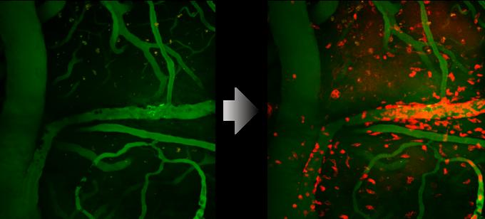 알츠하이머 모델동물 뇌의 미세아교세포를 CDr20으로 관찰한 모습이다. CDr20을 주입하기 전(왼쪽)에는 보이지 않던 미세아교세포가 주입 후에는 붉은 색으로 빛나는 것을 볼 수 있다. 기초과학연구원 제공