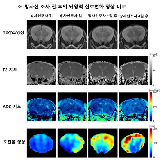 방사선 치료 전후의 뇌 영역 신호를 비교했다. 사진제공 한국원자력의학원