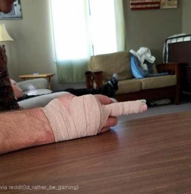 안타까운 아빠의 손가락 부상