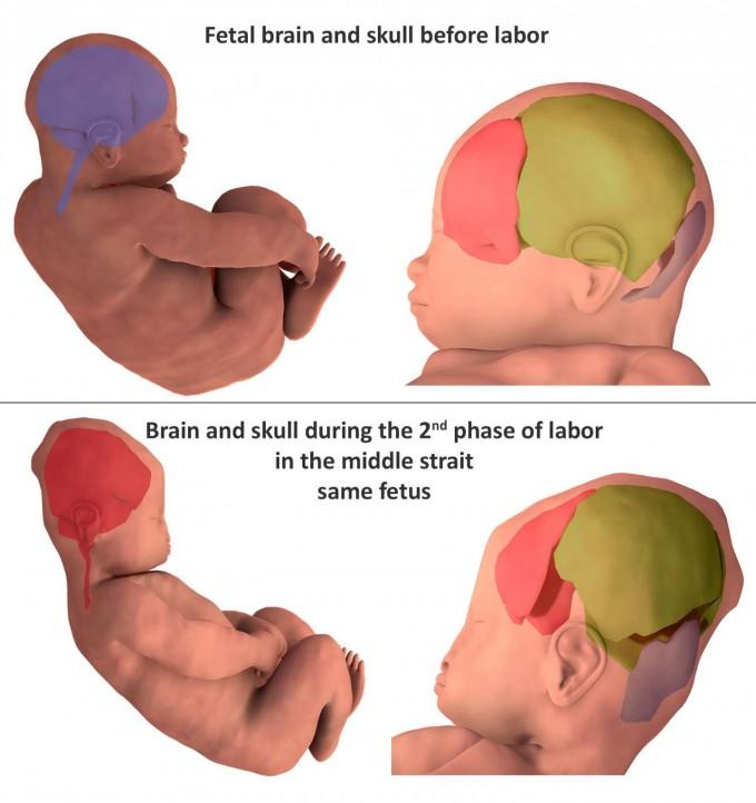 태아가 좁은 산도를 통과해 태어날 때 크고 둥근 두개골 형태를 변형시키는 시기와 방법이 3D MRI 연구로 밝혀졌다. 사진제공 오베르뉴대