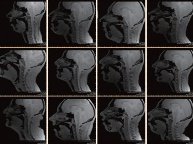 미국 서던캘리포니아대(USC) 연구팀은 래퍼나 비트박서의 현란한 혀 기술의 비밀을 실시간 자기공명영상(MRI) 기술을 통해 확인했다. 사진은 연구팀이 실시간 MRI 기술로 촬영한 비트박서의 구강 내 근육의 움직임. USC 제공