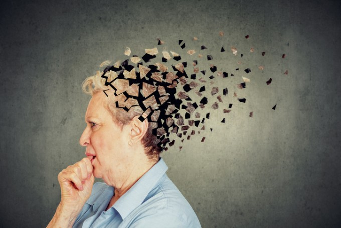 미국 연구팀이 알츠하이머 치매와는 다른, 새로운 유형의 치매를 발견했다. 뇌에서 유전자 발현 과정에 관여하는 단백질에 돌연변이가 쌓이면서 발생하는 것으로 추측된다. 게티이미지뱅크 제공