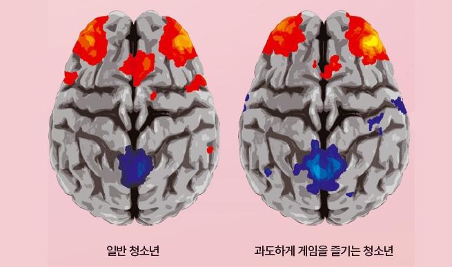 일반 청소년(왼쪽)과 과도하게 게임을 즐기는 청소년(오른쪽)을 각각 30명씩 휴지기 기능성자기공명영상을 찍어 비교했다. 전두엽은 노란색일수록, 후두엽은 짙은 푸른색일수록 연결성이 좋다는 뜻이다. 단순 사고를 반복하는 게임을 많이 하면 좌우 전두엽에 위치한 신경세포간 연결성이 커지고, 창의적 사고에 필요한 후두엽 부분의 연결성은 줄어든다. 동아사이언스(자료: Frontiers in Human Neuroscience)