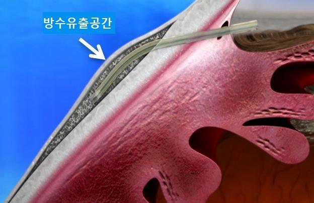 결막하 녹내장 스텐트 삽입술은 눈 흰자(결막)를 1.8mm 정도 절개한 구멍으로 미세한 스텐트를 넣어 방수가 결막 아래 공간으로 빠져나가게 하는 최신 수술법이다. 기존 수술법보다 치료 효과가 높고 부작용이 적다. 분당차병원어 방수가 결막 아래 공간으로 빠져나갈 수 있는 통로를 만들어주는 미세절개수술법이다. 기존 수술법보다 치료 효과가 높고 부작용이 적다. 분당차병원 제공