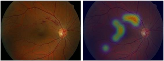 국내연구진, 망막사진으로 12가지 안과질환 진단 AI 개발