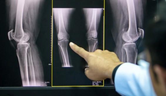 골다공증 원인 저칼슘혈증 일으키는 돌연변이 찾았다