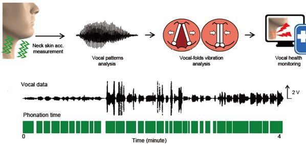 성대의 사용시간과 목소리 크기 등을 모니터링 한 후 이를 분석해 성대를 관리하는데도 활용할 수 있다. 포스텍 제공
