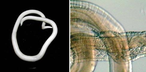 회충과 편충. 위키미디어 제공