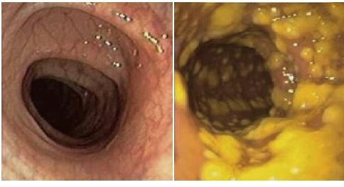 건강한 장은 선홍색이지만(왼쪽), 위막성대장염에 걸린 장은 누런 고름이 잔뜩 생긴다. 네이처 마이크로바이올로지 제공