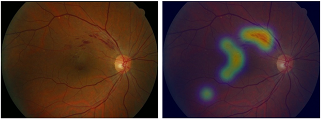 안과에서 촬영한 망막 안저 사진(왼쪽)과 분당서울대병원과 서울시립보라매병원 공동 연구팀이 개발한 AI로 질환을 찾아낸 결과 이미지(오른쪽). 분당서울대병원 제공