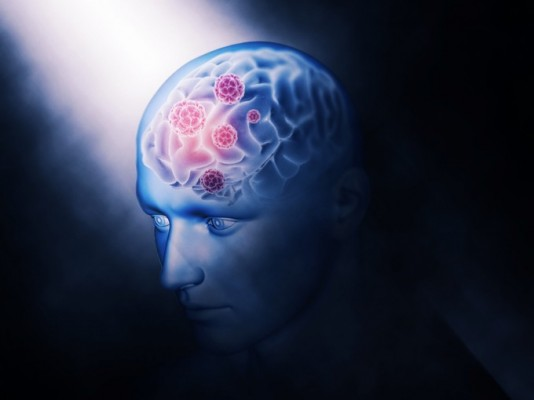 차세대 치매 치료제의 표적은 '잇몸병 일으키는 세균'