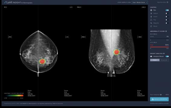 국산 유방암 판독보조 AI, 식약처 첫 허가