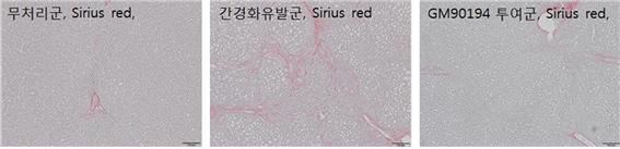 간경변 유발 설치류 동물(가운데)의 경우, 간 섬유화가 진행돼 대리석 무늬처럼 생긴 흉터조직이 확인된다. 신약후보물질(GM90194)을 투여하고 면역염색법으로 평가한 결과, 투여군의 간 섬유화가 현저히 감소했다는 것을 확인할 수 있다(오른쪽). 사진제공 한국화학연구원