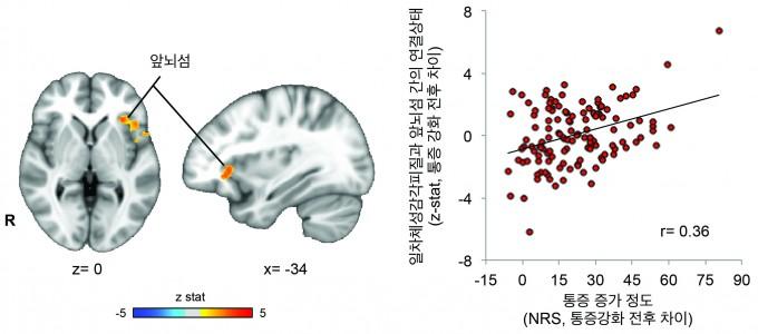 요통 환자의 허리통증이 심할수록 현출성 네트워크의 대표적 영역인 앞뇌섬 피질과 일차체성감각피질 간의 기능적 연결성이 크게 증가했다. 한의학연 제공