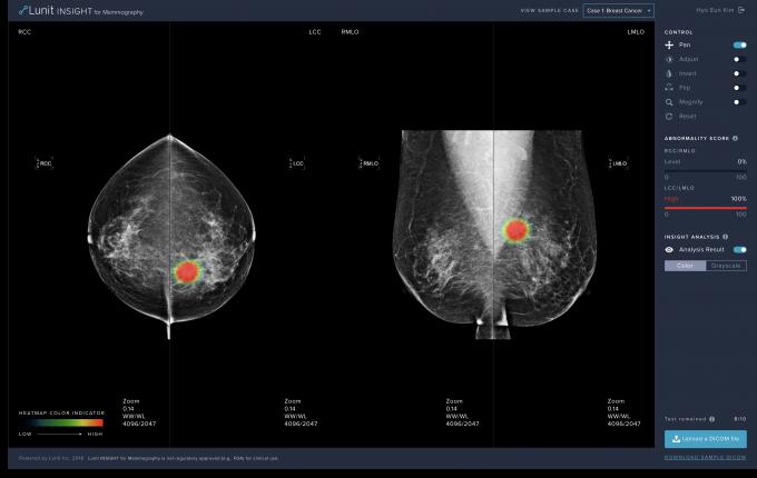 루닛의 유방암 진단보조 소프트웨어 ′루닛 인사이트 MMG′의 온라인 데모 웹사이트 화면이다. 이 소프트웨어는 29일 식품의약품안전처로부터 허가를 받았다. 루닛 제공