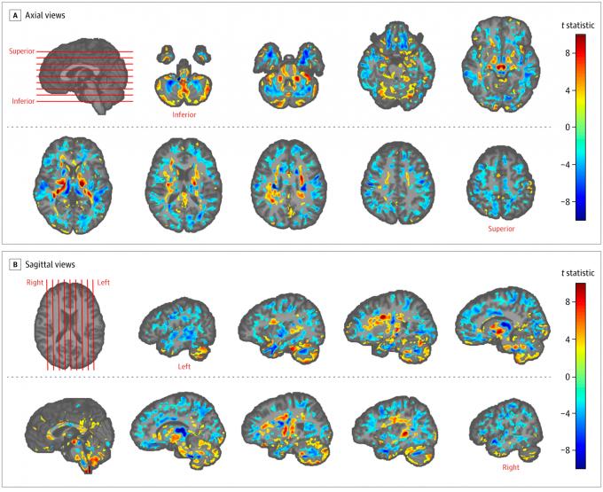 미국 연구팀이 쿠바에 머무른 뒤 이상 증상을 호소한 미국 외교관들의 뇌를 분석했다. 파란색으로 보이는 부분이 일반인에 비해 뇌의 크기가 작아진 부분이고 빨간 부분이 커진 부분이다. 미국의학회지(JAMA) 제공