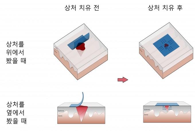 미국과 캐나다 연구팀이 개발한 상처 봉합 젤반창고의 원리. 미국 하버드대 비스생물공학연구소 제공