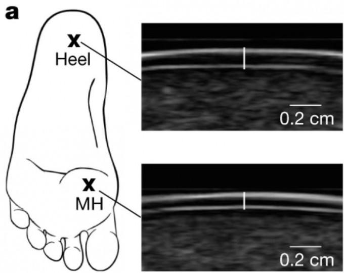 연구자들은 초음파로 발바닥에서 지면에 접촉하는 두 부분인 뒤쪽(heel)과 제1중족 골두(MH)의 굳은살 두께를 측정했다. 그 결과 맨발로 다니는 사람들이 신을 신는 사람들보다 발바닥 굳은살이 더 두꺼웠다. 네이처 제공
