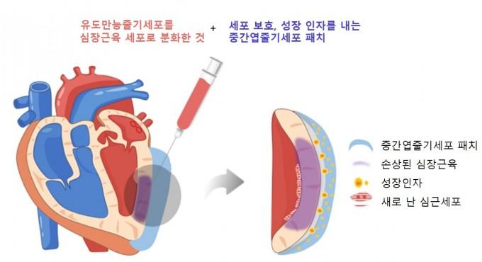 국내 연구진이 유도만능줄기세포에서 분화한 심근세포와 중간엽줄기세포로 만든 심장패치를 이식해 심근경색을 치료하는 방법을 개발했다. 한국연구재단 제공