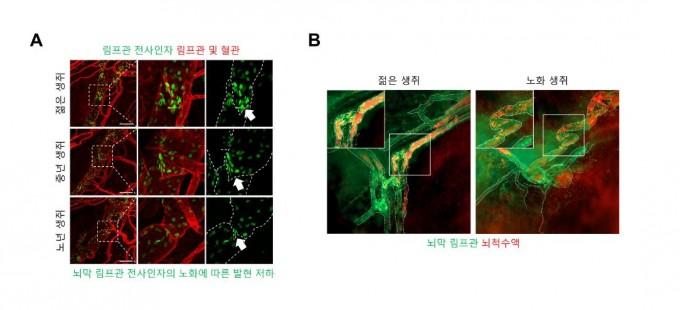 노화에 따른 뇌 하부 뇌막 림프관의 기능 저하가 관찰된다. 젊은 생쥐에 비해 노화 생쥐의 뇌막 림프관은 구불구불한 형태를 뛰며, 노화 생쥐에서 뇌막 림프관 내에서 관찰되는 뇌척수액이 더 적게 관찰됨을 알 수 있다. 과학기술정보통신부 제공