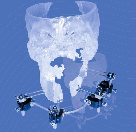 글로벌 3D프린팅 소프트웨어업체인 머티리얼라이즈가 3D 프린팅 기술로 제작한 두개골 임플란트. 머티리얼라이즈 제공