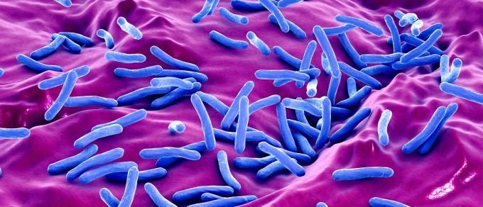 기존 치료제가 듣지 않아 결핵균(사진) 중에서도 특히 치명적인 다제내성 결핵균을 치료할 새로운 방법이 14일 FDA 승인을 받았다. 기존 다제내성 결핵균 치료제보다 생존율이 2.5배나 높은 89%나 되는 것으로 알려졌다. 특히 소아청소년 환자에게도 부작용이 거의 없이 효과적으로 쓰일 전망이다. 티비얼라이언스 제공