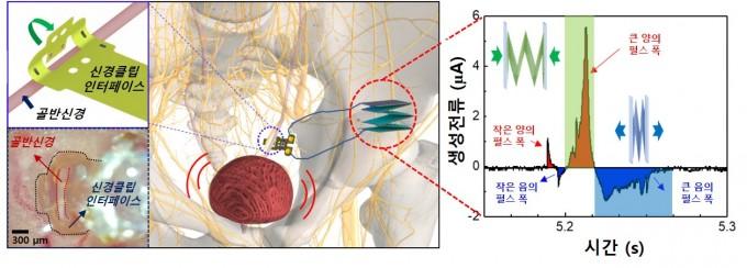 개발한 기계적-신경자극기를 골반신경에 삽입하고, 이를 이용해 신경 조절을 통한 방광기능을 조절하는 방식을 나타낸 모식도(가운데)로, 이 때 삽입된 신경자극기에서 생성된 신경자극을 위한 출력 신호를 보여준다(오른쪽). DGIST 제공