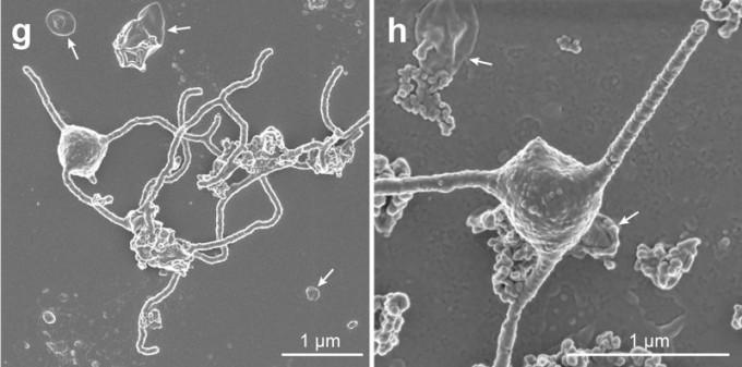 전자현미경으로 본 아스가드 고세균 MK-D1의 모습이다. 세포는 대장균보다도 작지만 실 같은 돌출물과 작은 주머니 형태인 소포(화살표)가 존재하는 특이한 형태다.  'bioRxiv' 제공