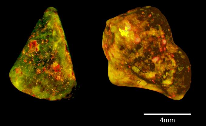 연구팀이 담석(노란색)의 구성 성분을 분석한 결과 호중구가 내놓는 효소(녹색)와 DNA(빨간색)가 발견됐다. 이 성분이 끈적끈적한 접착제 역할을 해 담석을 생성하거나, 크기를 점점 키운다. 면역학 제공.