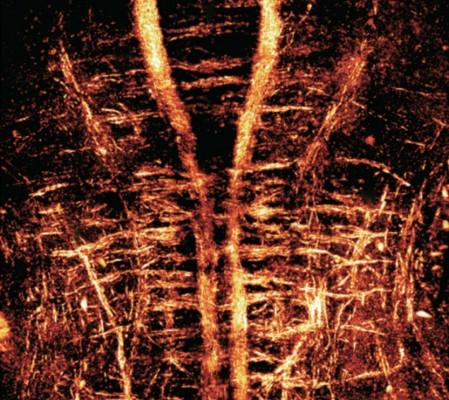 심장 꿰뚫어 보는 홀로그램 현미경