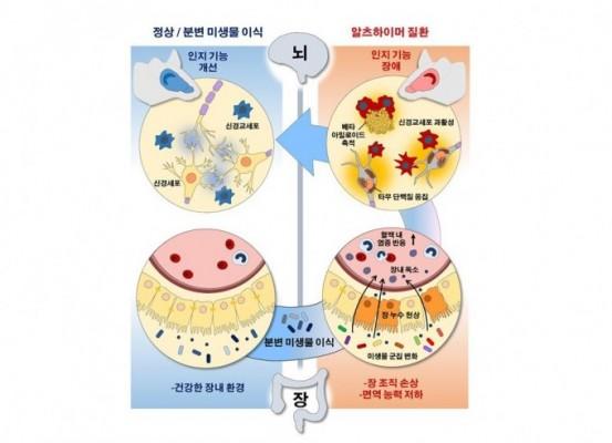 장내미생물의 또 다른 능력…알츠하이머 치매 늦춘다