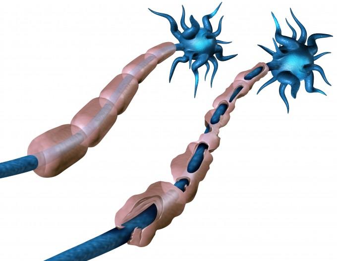 건강한 신경세포(왼쪽)와 다발성경화증이 발생한 신경세포(오른쪽). 다발성경화증은 신경세포(파란색)를 둘러싸고 있는 수초(붉은색)가 면역계 이상으로 손상됐을 때 발생한다. 수초가 손상되면 신경세포 내 전기신호를 전달하는 일이 어려워지기 때문이다. 서울대병원 제공