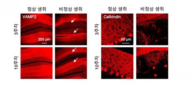 소뇌 전기신호 차단과 그에 따른 지속적인 세포 퇴화 및 사멸을 보여준다. KIST 제공