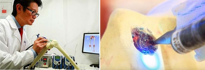 호주 멜버른대 의대와 성빈센트병원 정형외과 연구팀이 개발한 3D 바이오펜. 관절염 등으로 손상된 연골 조직을 재생시키는 줄기세포치료제를 주입할 수 있다. BioFab3D 제공