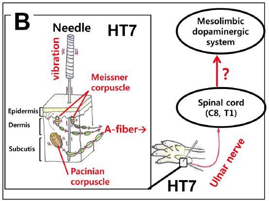 신문혈(HT7)에 침을 놓으면 근처에 분포한 마이스너소체와 파치니소체가 자극되면서 축삭(A섬유)을 통해 척골신경(ulnar nerve)을 타고 척추를 거쳐 뇌의 보상회로인 중뇌피질변연계에 영향을 미친다. 그 결과 알코올의존증을 치료하는 효과를 낼 수 있다. ′플로스 원′ 제공