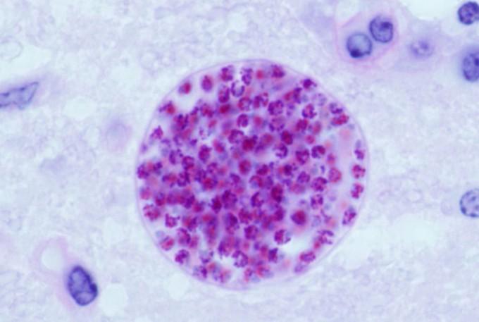 톡소포자충이 쥐의 뇌조직에 만든 낭. USDA 제공