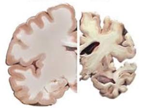 건강한 사람의 뇌(왼쪽)과 중증 치매 환자의 뇌(오른쪽). 중증 치매 환자는 정상인과 비교해 그 크기가 눈에 띄게 작으며, 내측 측두엽의 위축이 두드러진다. 경희대병원
