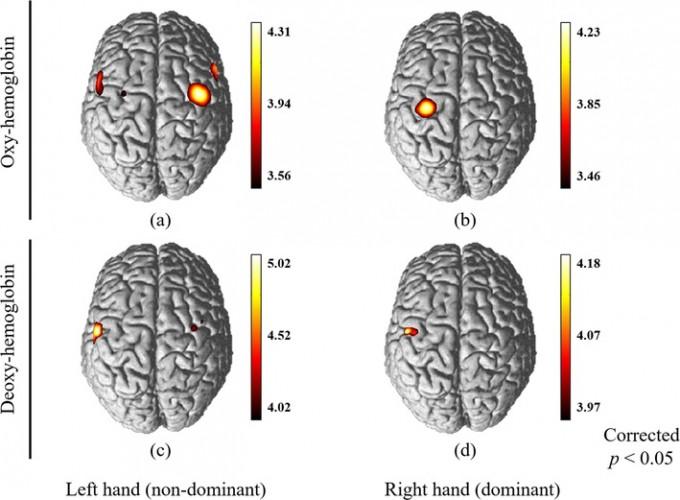 복잡한 동작 수행 시 숙련도 차이에 따른 대뇌 피질 활성화 패턴. DGIST 제공.