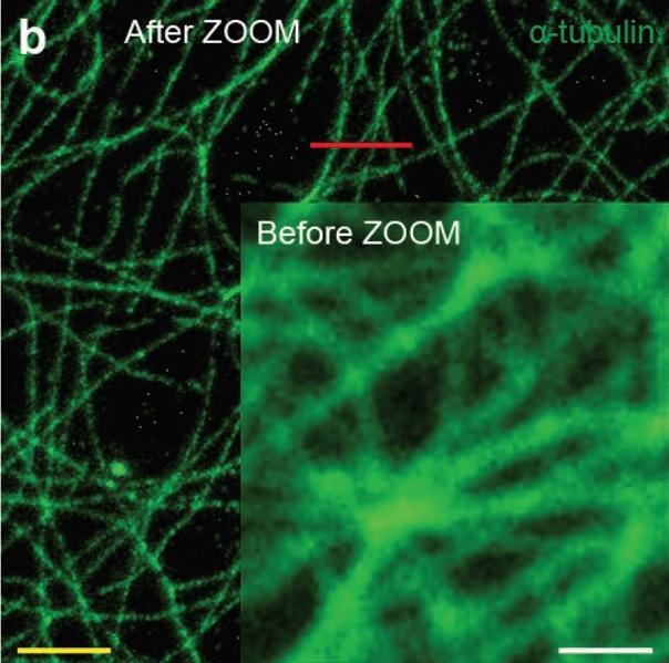 연구팀이 개발한 뇌 팽창기술을 적용하기 전(작은 사진)과 후의 사진이다. 세포 속 미세섬유의 화질이 개선됐다. 수십nm 굵기의 미세섬유가 한 가닥 한 가닥 세밀하게 보인다. 어드밴스드 사이언스 제공