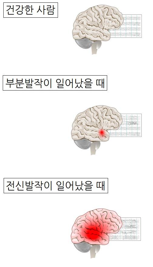 건강한 사람의 뇌파와 뇌전증 환자가 부분발작, 또는 전신발작을 일으켰을 때 뇌파가 서로 다르다. 이것을 좀 더 정밀하게 검사하려면 뇌자도가 필요하다. 게티이미지뱅크