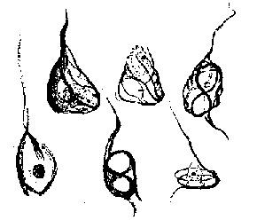 1911년 알츠하이머 박사의 신경섬유 엉킴(neurofibrillary tangles) 스케치.