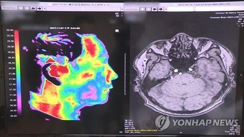 '뇌출혈 영상, AI가 판독'…SK C&C-아주대의료원 공동연구 협약