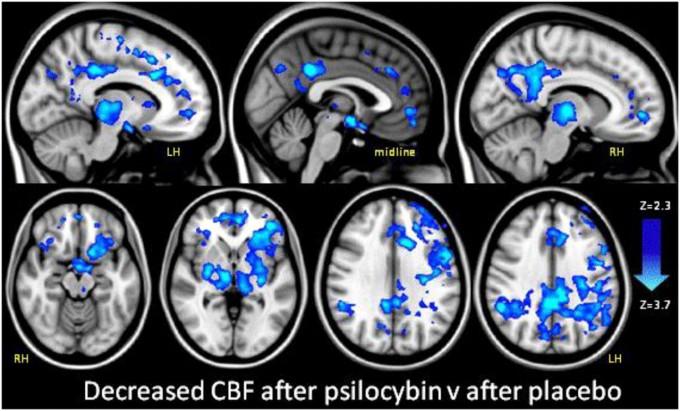 실로시빈을 투여한 사람의 fMRI 데이터로 디폴트 모드 네트워크(DMN)의 혈류량이 크게 줄었음을 알 수 있다. 그 결과 뇌의 엄격한 통제 시스템이 느슨해지며 감각의 확장과 함께 자아가 해체되는 경험을 하게 되는 것으로 보인다. 'PNAS' 제공