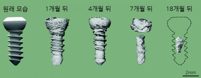 토끼의 아래턱뼈에 이식한 마그네슘합금 뼈 나사가 시간에 따라 녹는 과정. 중국금속학회지 제공